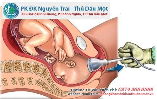 Phá thai an toàn cho nữ giới bằng phương pháp hút điều hòa kinh nguyệt
