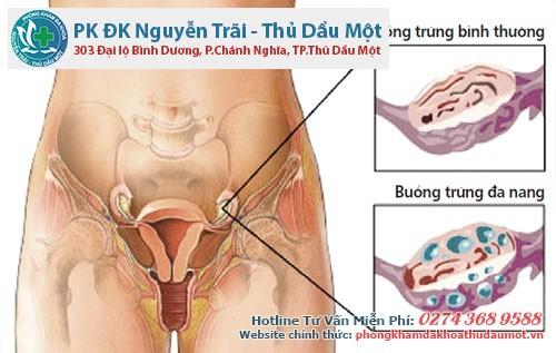 Bệnh đa nang buồng trứng ở nữ giới là gì - Độ tuổi mắc bệnh