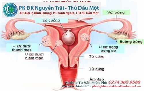 Đau, ngứa âm đạo có thể là dấu hiệu u xơ tử cung