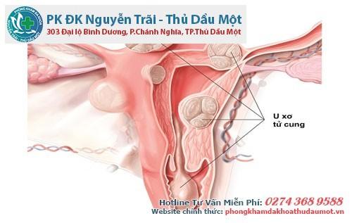 Hình ảnh các khối u xơ tử cung