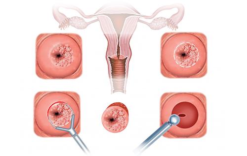 viêm lộ tuyến tử cung là nỗi ám ảnh của nhiều chị em phụ nữ